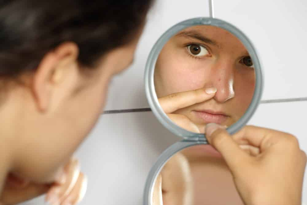 Do you need to clear your adult acne?
